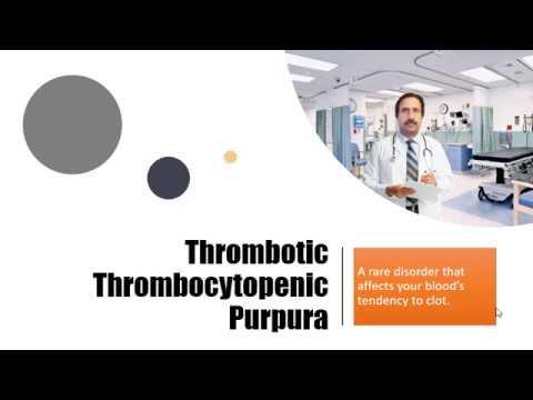 Thrombotic Thrombocytopenic Purpura : Causes, Diagnosis, Symptoms, Treatment, Prognosis