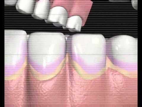 Hvordan det blir hull i en tann