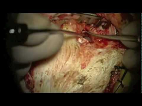 Cholesteatoma Surgery - Canal Wall Up_Dr Nirmal Patel, Sydney Australia