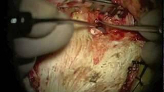 Popular Videos - Cholesteatoma & Mastoidectomy