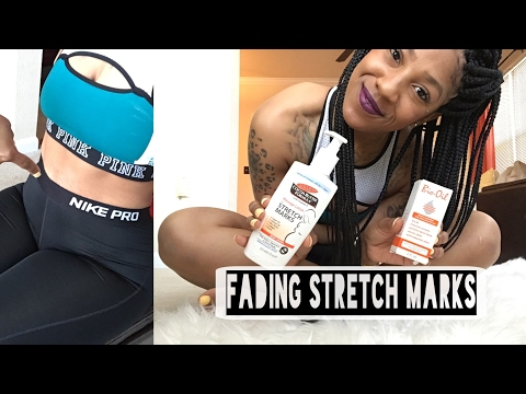 How to fade stretch marks | 4 tips !