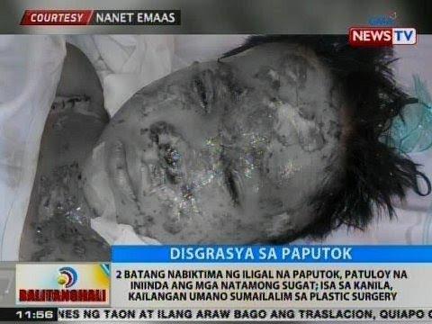 BT: 2 batang nabiktima ng iligal na paputok, patuloy na iniinda ang mga natamong sugat