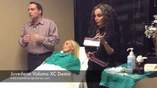 Juvederm Voluma XC Demo and Before and After Photos 1 Thumbnail