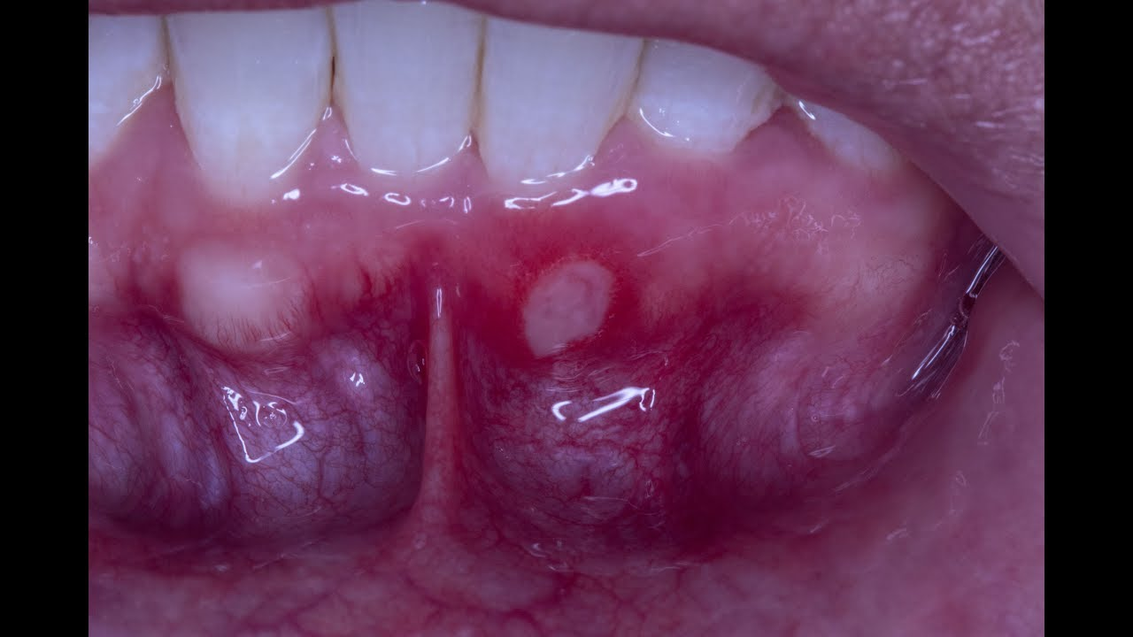 Treating An Aphthous Ulcer With Debacterol