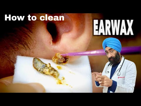 How to clear your Ears? Remove Wax from Ear | Q tips side effects | Dr.Education (Eng)