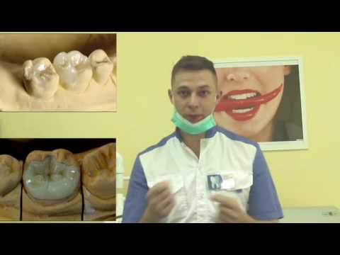 цельнокерамические вкладки ,  старые пломбы на накладки , лечим зубы правильно