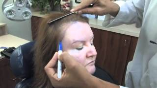 How to design a woman's Hair Restoration - Plastic Surgery Tips with Dr. Jeffrey Epstein