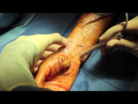 Live Surgery: Reverse Radial Forearm Flap for Invasive Cancer of the Hand