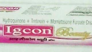 Igcon ~ Beauty Cream { अपने चहरे को सुपर गोरा बनाये } पूरी जानकारी हिंदी में ।