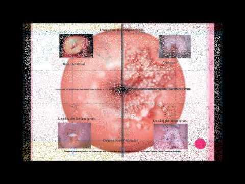 HPV E O CÂNCER DE COLO DE ÚTERO - YouTube