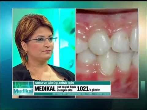 Diş Estetiği, Gülüş Tasarımı.