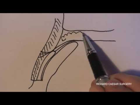 upper lid anatomy - YouTube