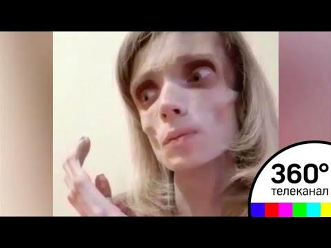 Мария кохно болела анорексией