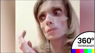 У страдающей анорексией Кристины Карягиной появился шанс на спасение
