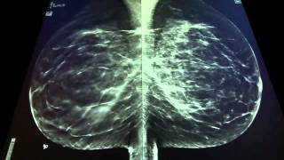 A 3d mammogram taken at st. joseph hospital shows cancerous mass growing, which is difficult to detect in the 2d test. star-like growth about two-th...