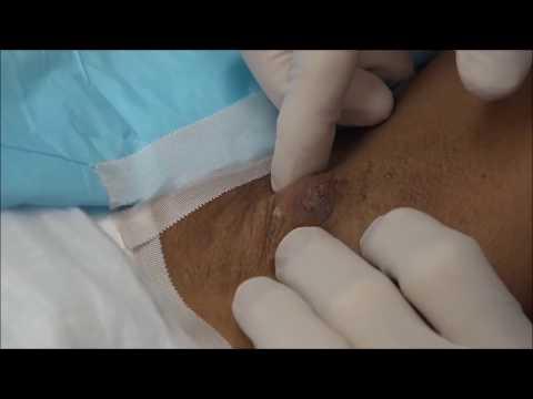 Armpit Zit!  Dr. Gilmore's Carbuncle Treatment!