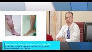 Prof. Dr. Cüneyt Köksoy - Toplardamar Tıkanıklığının Tedavisi Nasıl Yapılır?
