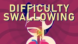 What is Dysphagia (Difficulty Swallowing)?
