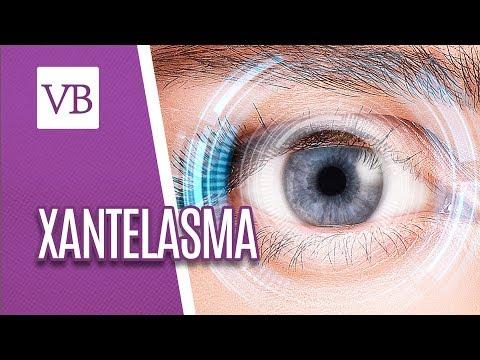 Xantelasma: Causas e Sintomas - Você Bonita (07/06/18)