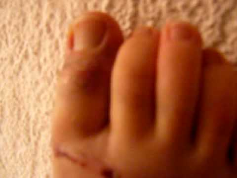 doigt de pied fracturé