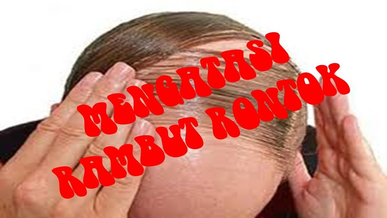 mengatasi rambut rontok - YouTube