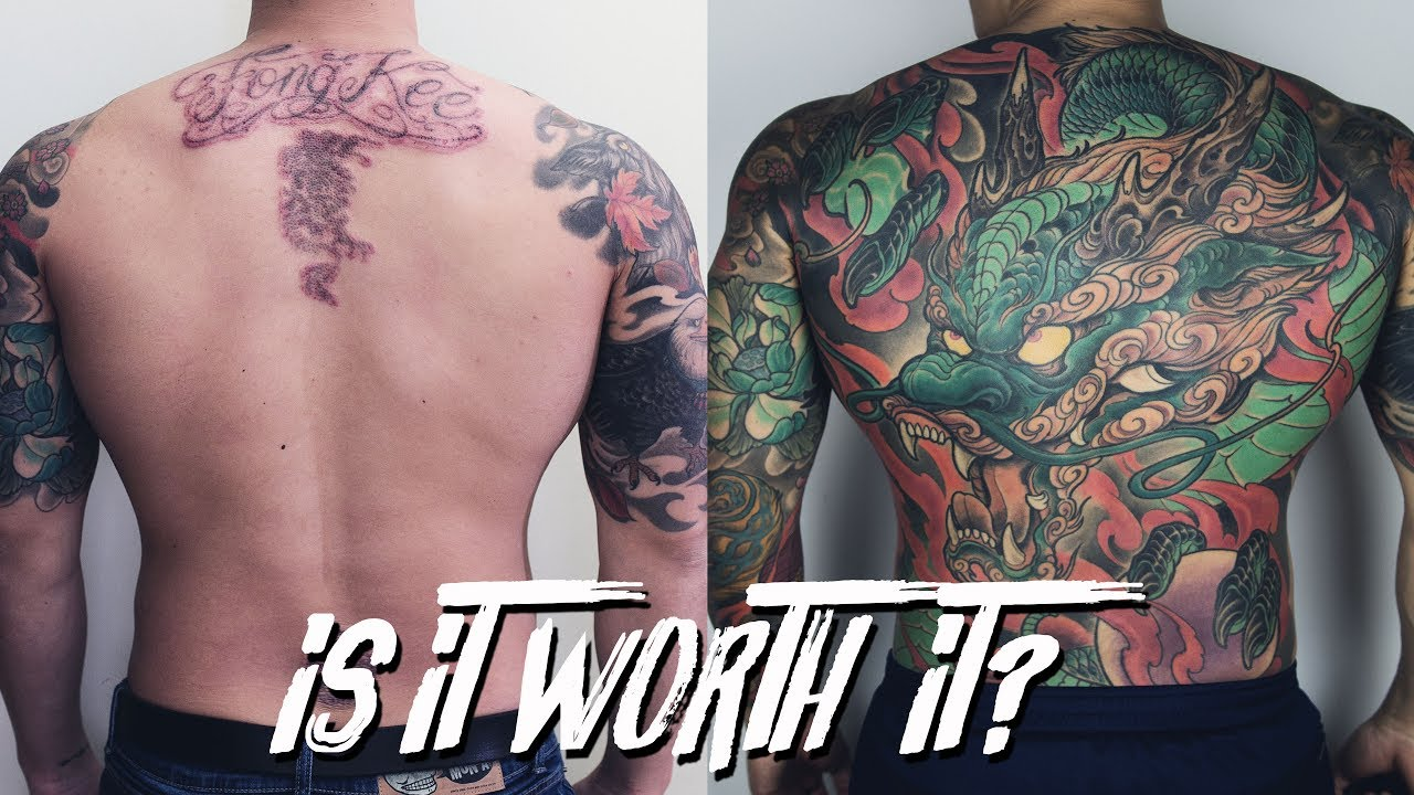 IS LASER TATTOO REMOVAL WORTH IT?   THESTYLEDOGG - YouTube