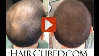 hair loss products - New Organic Solution