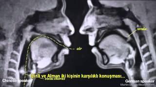 MR' da sex görüntüleri