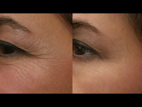 reduce-wrinkles-naturally-|-ayurvedic-home-remedy