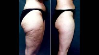 how to lose cellulite fast - Swimming practice to reduce cellulite