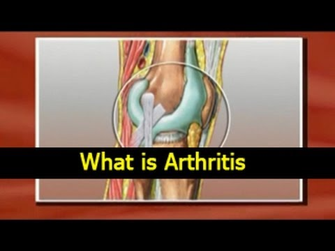 What is Arthritis - Causes, Symptoms, Treatments and Diet Tips in English