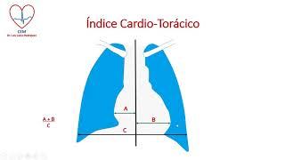 De cardíaca x síndrome mayo clínica