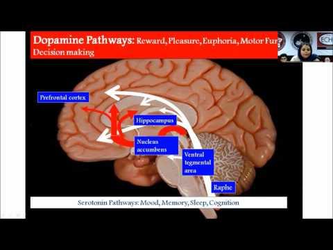 Transcranial Direct Current Stimulation by Dr.Linda Sherine