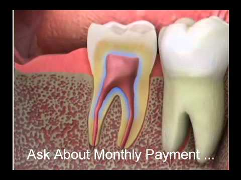 PULPITIS info on Root Canal 2011