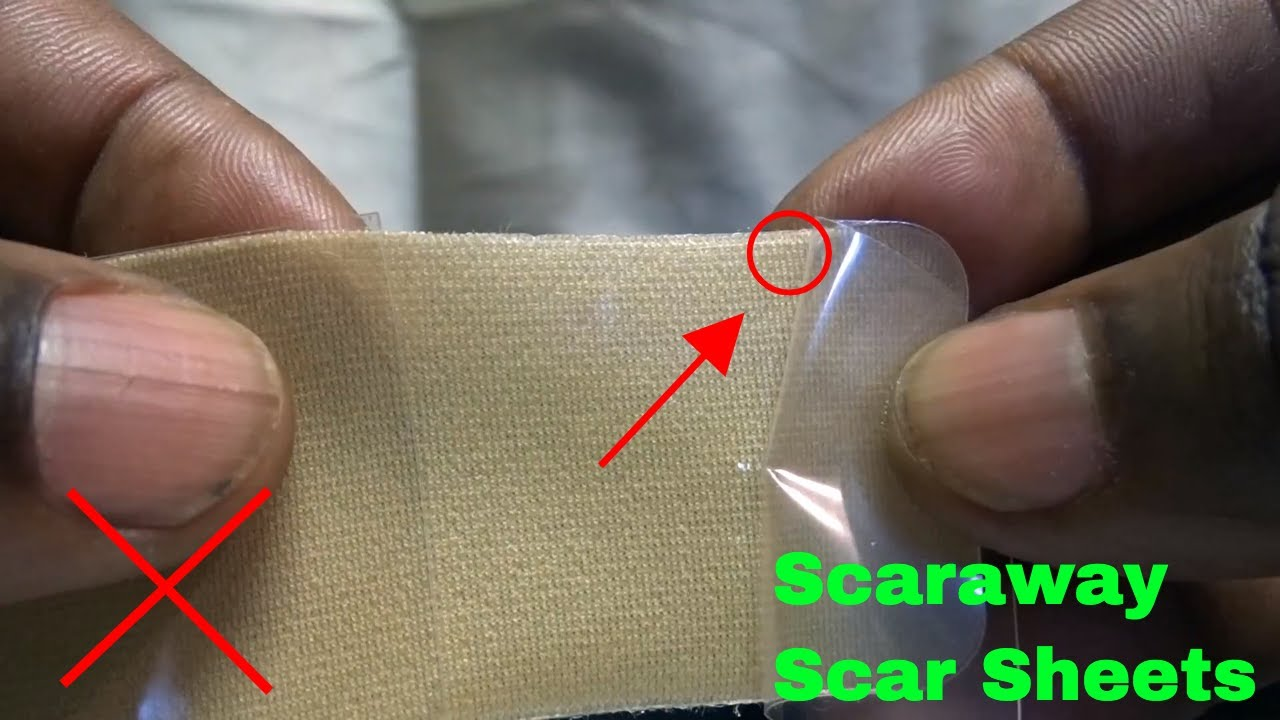 How To Use Scaraway Silicone Scar Sheets Review Youtube
