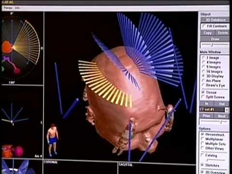 New Radiation Treatment for Brain Tumors   Emory Healthcare   Atlanta, GA
