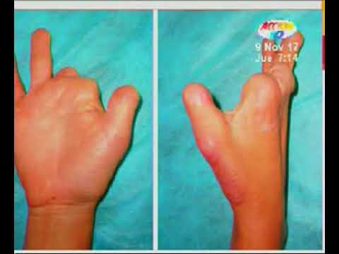amputación del dedo del pie y diabetes