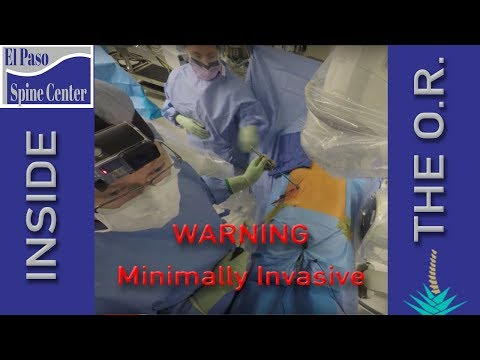 Minimally Invasive Revision Lumbar Fusion