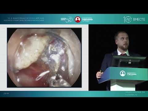 Эндоскопическое лечение раннего рака толстой кишки