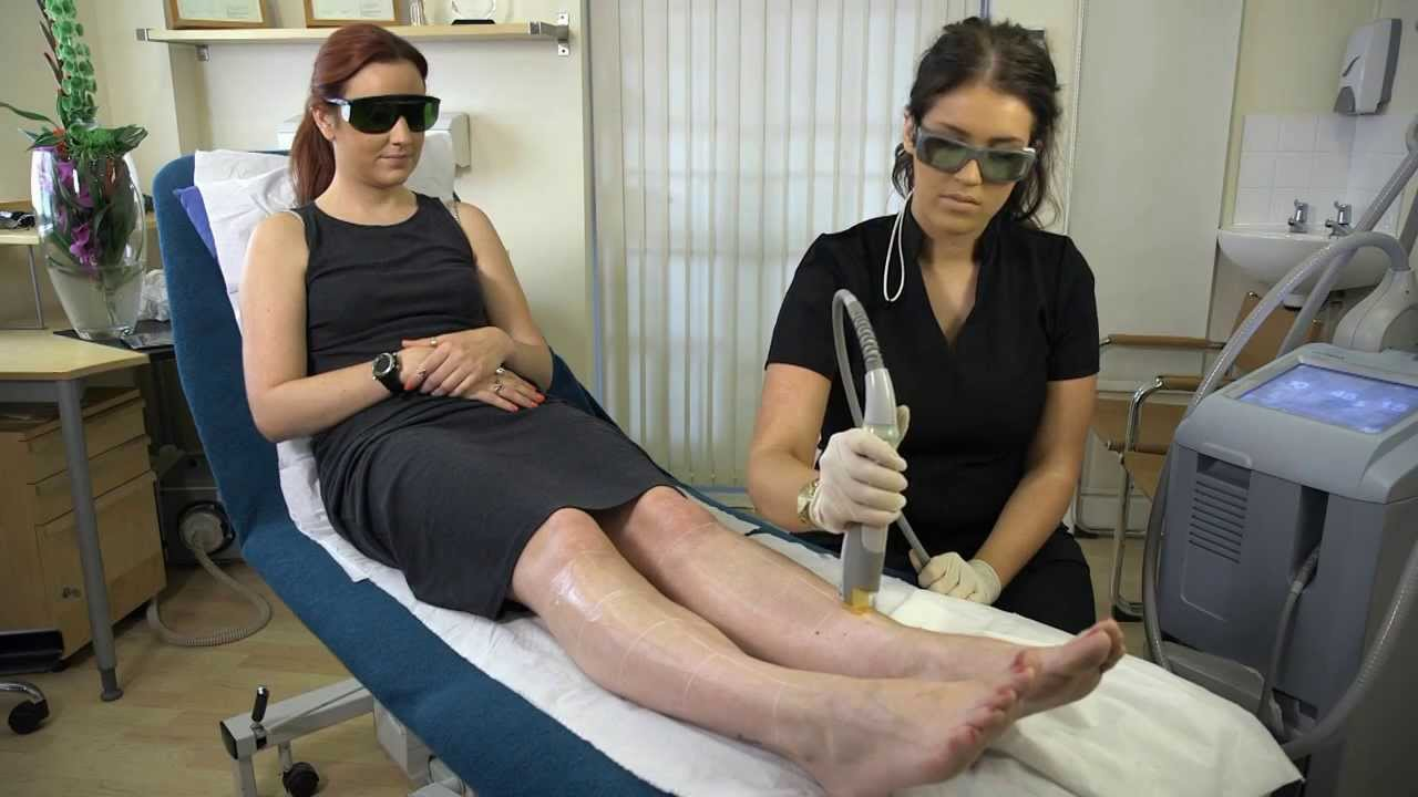 Cutera Coolglide Laser Hair Removal - Patient Treatment Review