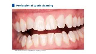 Product Training Flairesse: Professional prophylaxis in the dental practice