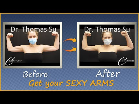 Lipo 360° Arms | Arm Liposuction Immediate Results | Celebrity Arms™ | Expert Dr. Thomas Su
