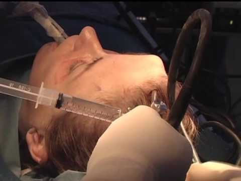 Endotine - Endoscopic Brow Lift Using The Ultratine Forehead Device