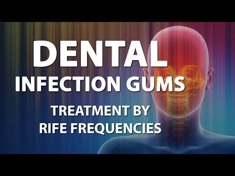 Dental Infection Gums - RIFE Frequencies Treatment - Energy & Quantum Medicine with Bioresonance