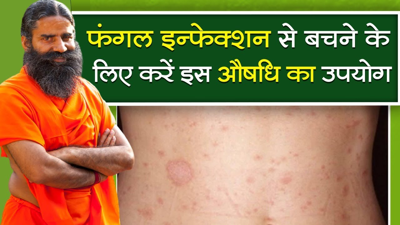 फंगल इन्फेक्शन (Fungal Infection) से बचने के लिए करें इस औषधि का उपयोग || Swami Ramdev