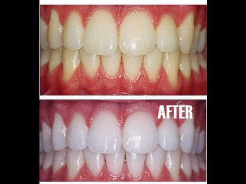 Teeth Whitening At Home With Baking Soda Amazing Results Youtube
