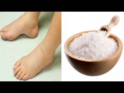 Easy home remedies for swollen feet!