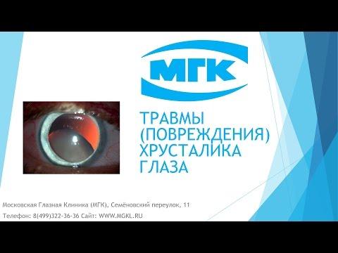 Повреждения (травмы) хрусталика глаза - причины, признаки и лечение