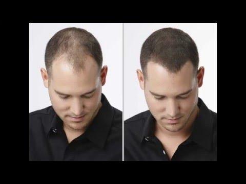 Haarausfall? Problem gelöst! Volles Haar in Sekunden