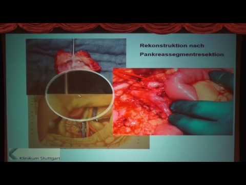 Chirurgie Bauchspeicheldrüsenkrebs - YouTube